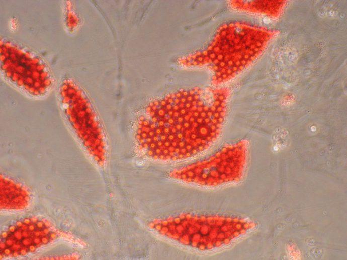 Moelle Osseuse, Globule Rouge, Traitement Leucémie